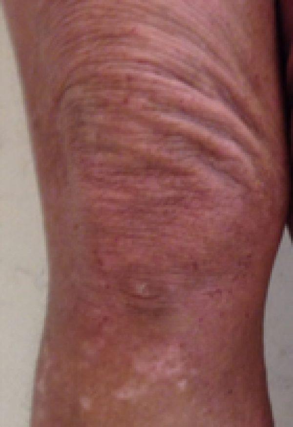 足のアトピーのビフォーアフターサムネイル